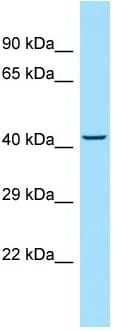 Western blot - Anti-MMAA antibody (ab130964)