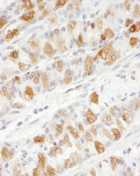 Immunohistochemistry (Formalin/PFA-fixed paraffin-embedded sections) - Anti-PKM antibody (ab131021)