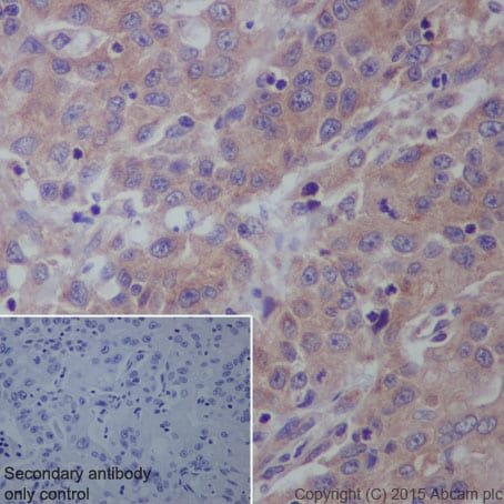 Immunohistochemistry (Formalin/PFA-fixed paraffin-embedded sections) - Anti-IL-12A antibody [EP5737] (ab131039)