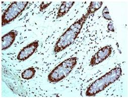Immunohistochemistry (Formalin/PFA-fixed paraffin-embedded sections) - Anti-HDGF antibody [EPR7899] (ab131046)