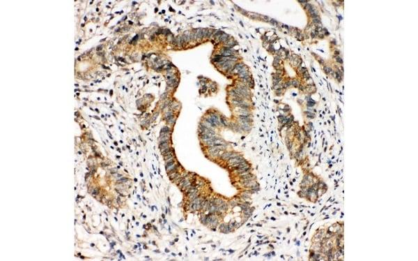 Immunohistochemistry (Formalin/PFA-fixed paraffin-embedded sections) - Anti-Integrin alpha 3 antibody (ab131055)
