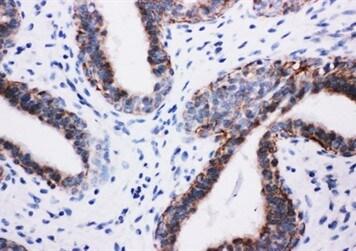 Immunohistochemistry (Formalin/PFA-fixed paraffin-embedded sections) - Anti-PI 3 Kinase p85 beta antibody (ab131067)