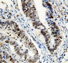Immunohistochemistry (Formalin/PFA-fixed paraffin-embedded sections) - Anti-HSF1 antibody (ab131081)