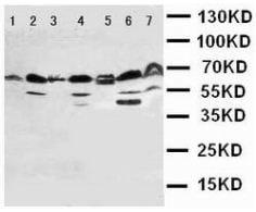 Western blot - Anti-HSF2 antibody (ab131085)