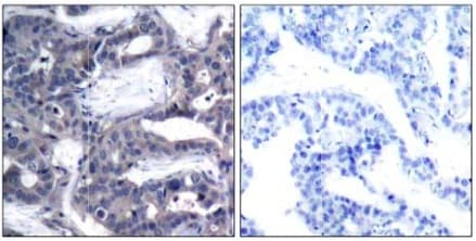 Immunohistochemistry (Formalin/PFA-fixed paraffin-embedded sections) - Anti-MEK2 (phospho T394) antibody (ab131095)