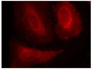 Immunocytochemistry/ Immunofluorescence - Anti-PDPK1 (phospho S241) antibody (ab131098)