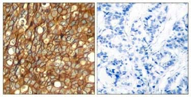 Immunohistochemistry (Formalin/PFA-fixed paraffin-embedded sections) - Anti-ErbB 2 (phospho Y1248) antibody (ab131104)