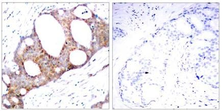 Immunohistochemistry (Formalin/PFA-fixed paraffin-embedded sections) - Anti-GSK3 alpha (phospho S21) antibody (ab131112)