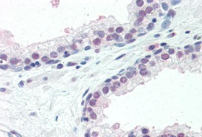 Immunohistochemistry (Formalin/PFA-fixed paraffin-embedded sections) - Anti-ISG15 antibody (ab131119)