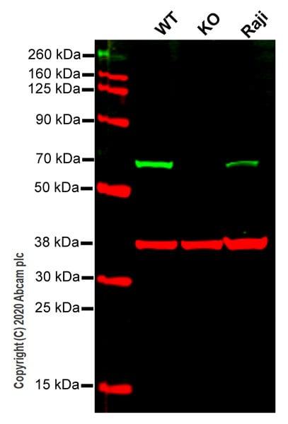 Western blot - Anti-CBS antibody [EPR8578] (ab131155)