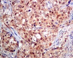 Immunohistochemistry (Formalin/PFA-fixed paraffin-embedded sections) - Anti-RCL antibody [EPR8686] (ab131252)