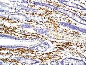 Immunohistochemistry (Formalin/PFA-fixed paraffin-embedded sections) - Anti-CD27 antibody [EPR8569] (ab131254)