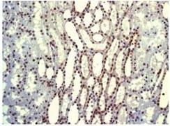 Immunohistochemistry (Formalin/PFA-fixed paraffin-embedded sections) - Anti-PDCD7 antibody [EPR8231] (ab131258)