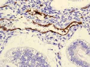 Immunohistochemistry (Formalin/PFA-fixed paraffin-embedded sections) - Anti-Claudin 5 antibody [EPR7583] (ab131259)