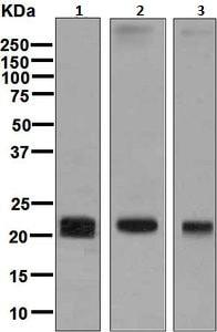 Western blot - Anti-Claudin 5 antibody [EPR7583] (ab131259)