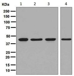 Western blot - Anti-IDH2 antibody [EPR7577] (ab131263)