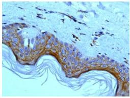 Immunohistochemistry (Formalin/PFA-fixed paraffin-embedded sections) - Anti-Periplakin antibody [EPR8296] (ab131269)
