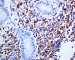 Immunohistochemistry (Formalin/PFA-fixed paraffin-embedded sections) - Anti-CD2 antibody [EPR6451] (ab131276)