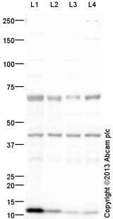 Western blot - Anti-CRELD1 antibody (ab131286)