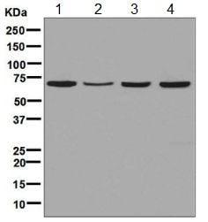 Western blot - Anti-TKTL2 antibody [EPR8592] (ab131331)