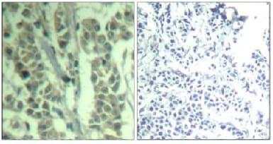 Immunohistochemistry (Formalin/PFA-fixed paraffin-embedded sections) - Anti-CBL (phospho Y700) antibody (ab131345)