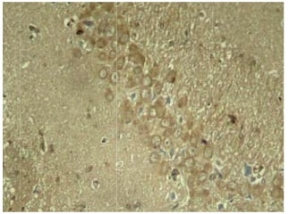Immunohistochemistry (Formalin/PFA-fixed paraffin-embedded sections) - Anti-Tau (phospho S262) antibody (ab131354)