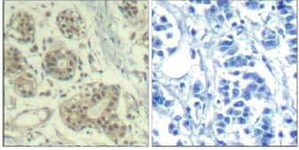 Immunohistochemistry (Formalin/PFA-fixed paraffin-embedded sections) - Anti-MDM2 (phospho S166) antibody (ab131355)