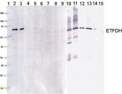 Western blot - Anti-ETFDH antibody [3D1AC4AF3] (ab131376)