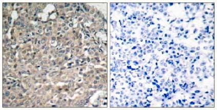 Immunohistochemistry (Formalin/PFA-fixed paraffin-embedded sections) - Anti-FAK antibody (ab131435)