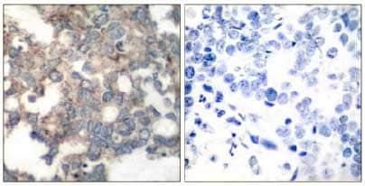 Immunohistochemistry (Formalin/PFA-fixed paraffin-embedded sections) - Anti-S6K1 (phospho S424) antibody (ab131436)