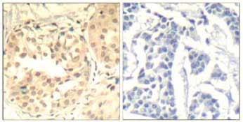 Immunohistochemistry (Formalin/PFA-fixed paraffin-embedded sections) - Anti-Cdk6 (phospho Y13) antibody (ab131439)