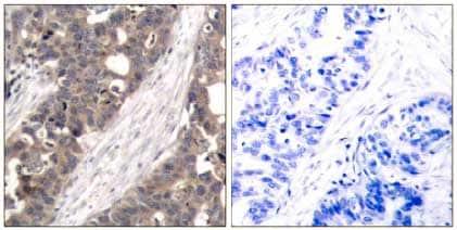 Immunohistochemistry (Formalin/PFA-fixed paraffin-embedded sections) - Anti-S6K1 antibody (ab131440)