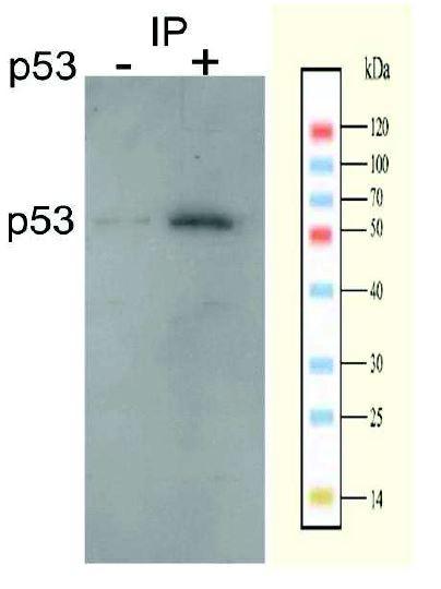 ChIP - Anti-p53 antibody (ab131442)