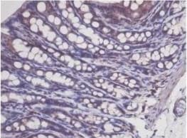 Immunohistochemistry (Formalin/PFA-fixed paraffin-embedded sections) - Anti-p53 antibody (ab131442)