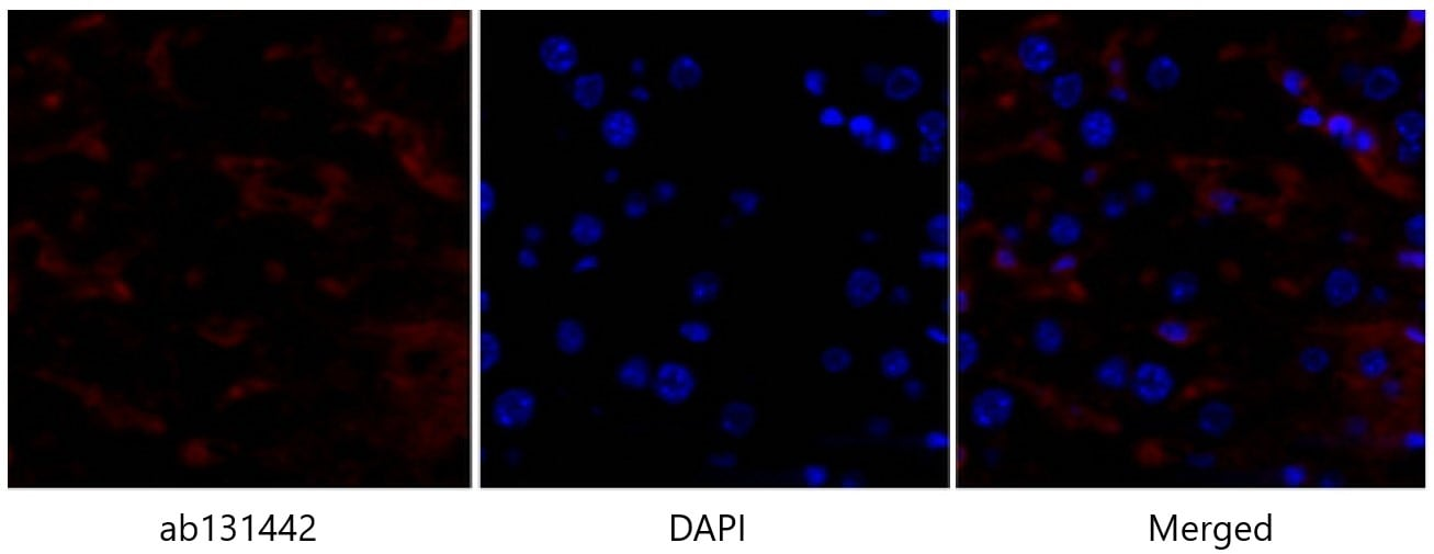 Immunohistochemistry (Formalin/PFA-fixed paraffin-embedded sections) - Anti-p53 antibody (ab131442)