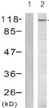 Western blot - Anti-GAB1 (phospho Y627) antibody (ab131458)