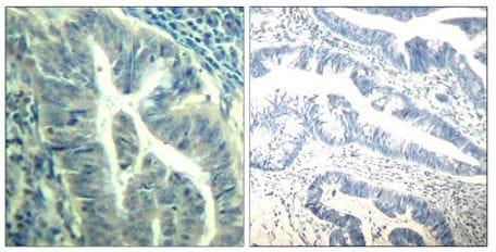 Immunohistochemistry (Formalin/PFA-fixed paraffin-embedded sections) - Anti-Cdk6 (phospho Y24) antibody (ab131469)