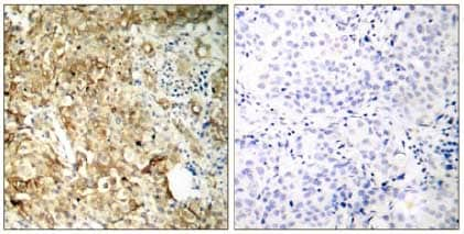 Immunohistochemistry (Formalin/PFA-fixed paraffin-embedded sections) - Anti-IGF1 Receptor antibody (ab131476)