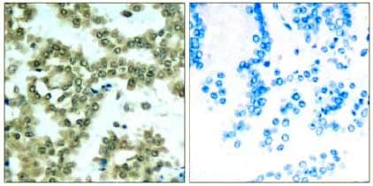 Immunohistochemistry (Formalin/PFA-fixed paraffin-embedded sections) - Anti-PKC theta/PRKCQ (phospho S676) antibody (ab131479)