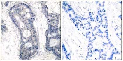 Immunohistochemistry (Formalin/PFA-fixed paraffin-embedded sections) - Anti-eIF4E antibody (ab131480)