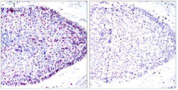 Immunohistochemistry (Formalin/PFA-fixed paraffin-embedded sections) - Anti-ATF2 antibody (ab131484)