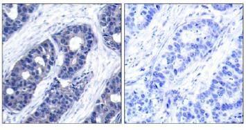 Immunohistochemistry (Formalin/PFA-fixed paraffin-embedded sections) - Anti-IRS1 antibody (ab131487)