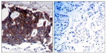 Immunohistochemistry (Formalin/PFA-fixed paraffin-embedded sections) - Anti-ErbB 2 antibody (ab131490)