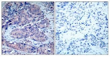 Immunohistochemistry (Formalin/PFA-fixed paraffin-embedded sections) - Anti-MEK4/MKK4 antibody (ab131494)