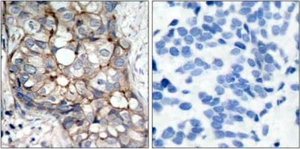 Immunohistochemistry (Formalin/PFA-fixed paraffin-embedded sections) - Anti-EGFR antibody (ab131498)