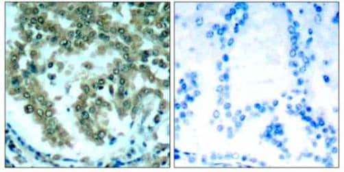 Immunohistochemistry (Formalin/PFA-fixed paraffin-embedded sections) - Anti-PKC theta/PRKCQ antibody (ab131503)