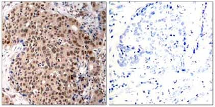 Immunohistochemistry (Formalin/PFA-fixed paraffin-embedded sections) - Anti-MK2 (phospho T334) antibody (ab131504)