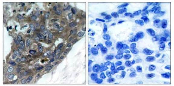 Immunohistochemistry (Formalin/PFA-fixed paraffin-embedded sections) - Anti-ASK1 antibody (ab131506)