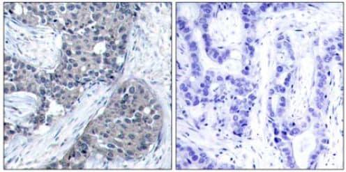 Immunohistochemistry (Formalin/PFA-fixed paraffin-embedded sections) - Anti-eIF4E (phospho S209) antibody (ab131513)