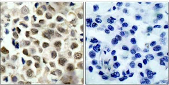 Immunohistochemistry (Formalin/PFA-fixed paraffin-embedded sections) - Anti-HDAC8 (phospho S39) antibody (ab131516)